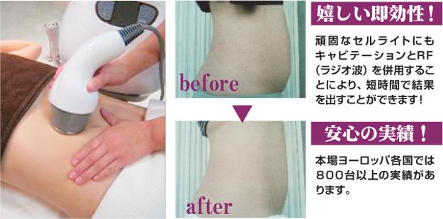 痩身キャビテーション 即効性と安心の実績|米沢市エステティックサロン ビークラッセ(b-classe)