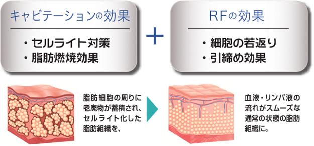 痩身キャビテーション キャビテーション効果+RF効果|米沢市エステティックサロン ビークラッセ(b-classe)