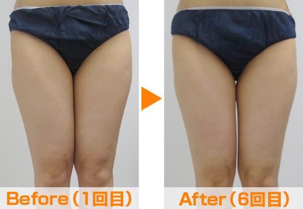最新痩身マシーン|米沢市エステティックサロン ビークラッセ(b-classe)